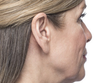 woman with hearing aids