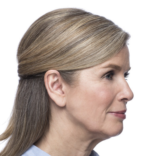 Woman with Micro OTE hearing aid